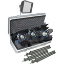 Arri Softbank D2 Tungsten 3 Light Kit - w/Stands and Case